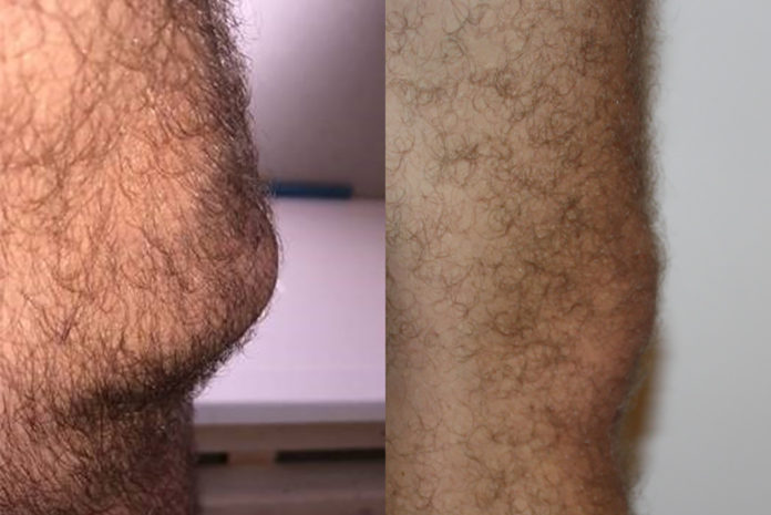 A comparison between a plumber's knee (left) and that of an office worker